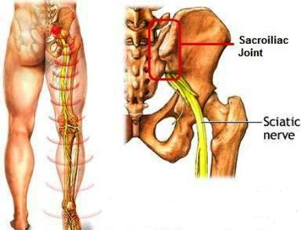 sciatic pain due to sijoint pain