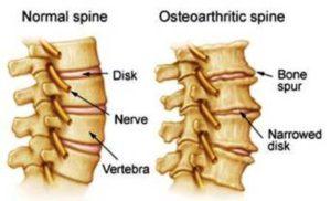 οστεοαρθρίτιδα της σπονδυλικής στήλης