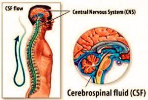 cebrospinal fluid